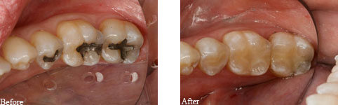 Tooth Colored Filling 02