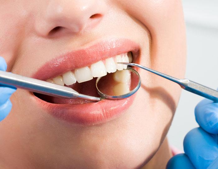 Dentist examining patient teeth