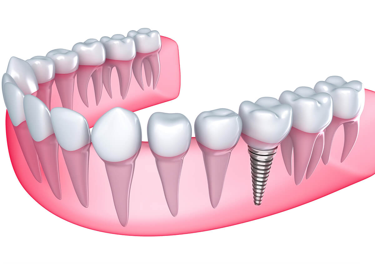 Replacing Missing Teeth in Riverview FL Area